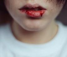 bleeding-girl-photography-vintage-favim-com-1645108